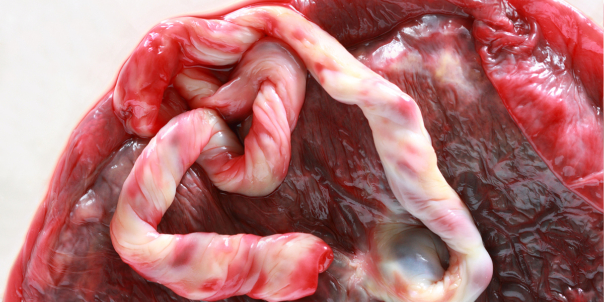 what are placental stem cells