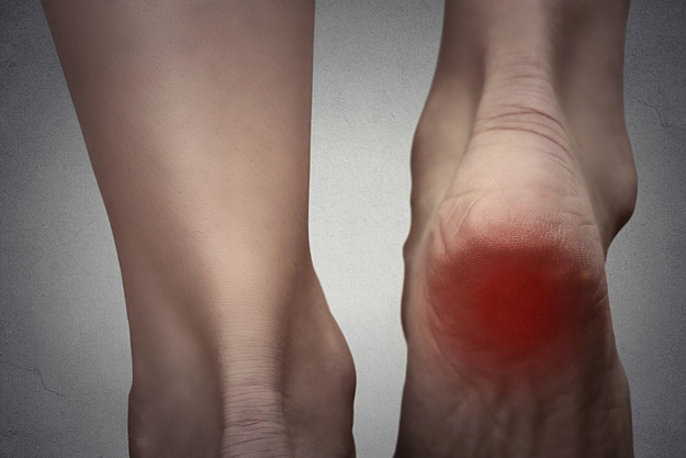 Stem Cell Injections for Plantar Fasciitis Treatment