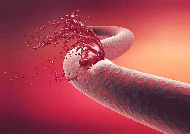 What Is Hemophilia?   Stem Cell Therapy as Hemophilia Treatment